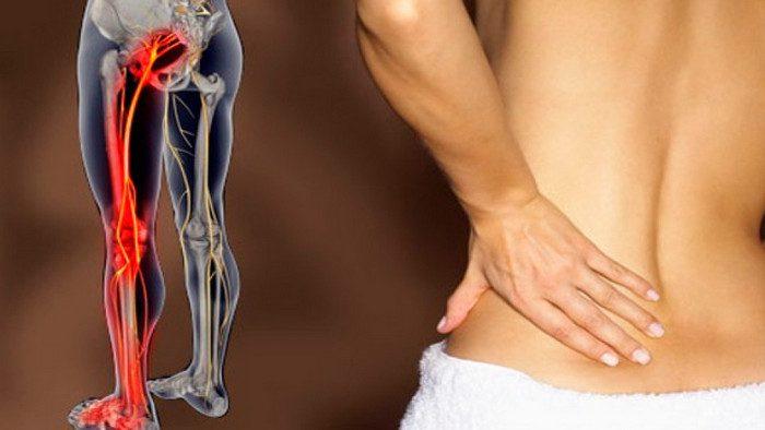 Защемление нерва в пояснице боль отдает в ногу беременна 107
