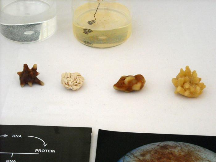 Как определить какие камни в почках при мочекаменной болезни?