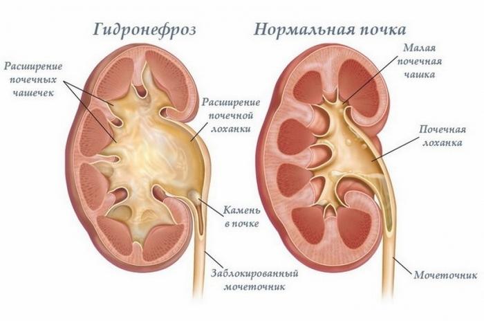 лечение гидронефроза без операции