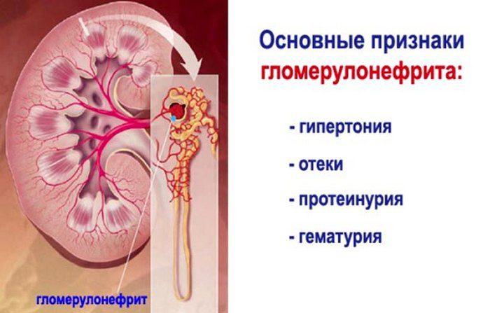 формы гломерулонефрита
