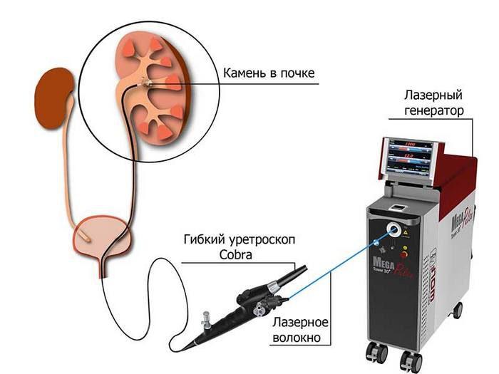 камни в почках операция или дробление