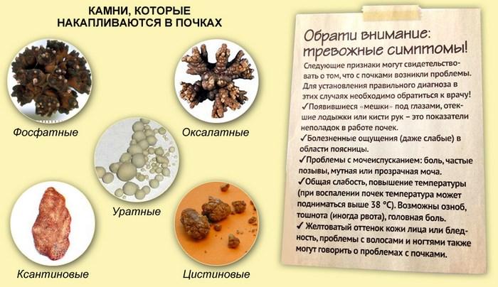какие бывают камни в почках по составу