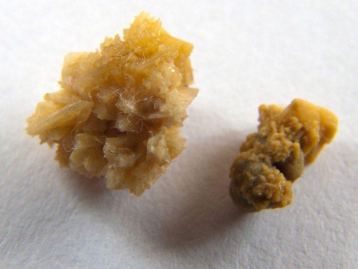 препараты при камнях в почках