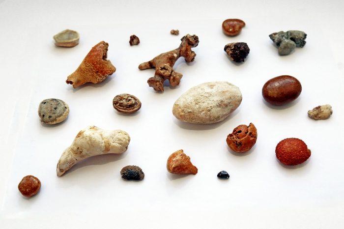 камни в почках препараты