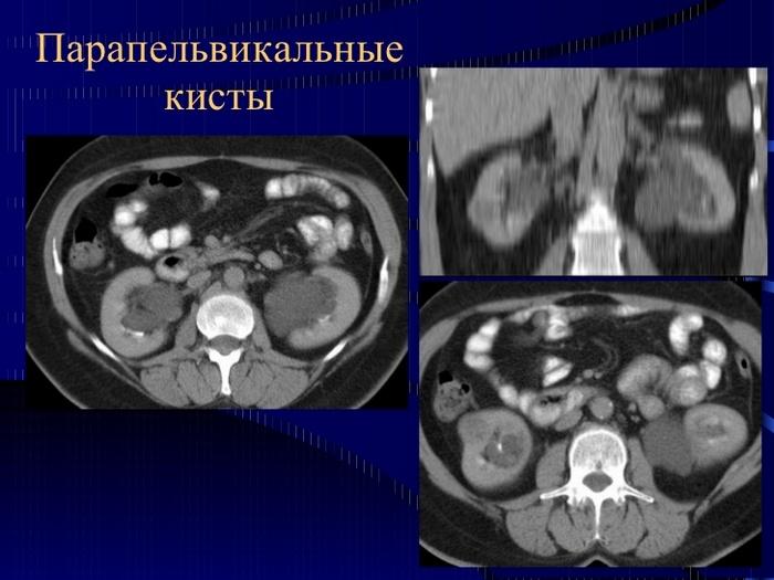 Парапельвикальная киста почки лечение