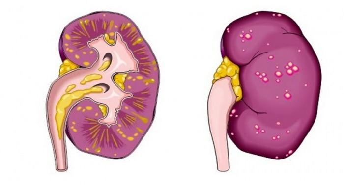 обструктивный пиелонефрит