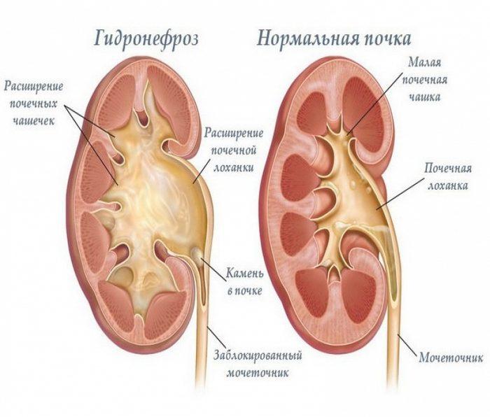 Что такое пиелоэктазия почек у мужчин причины симптомы лечение