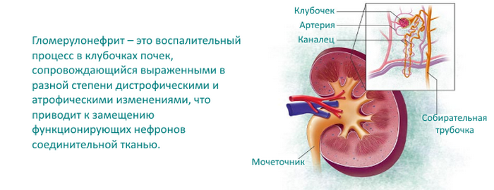 пиелонефрит и гломерулонефрит