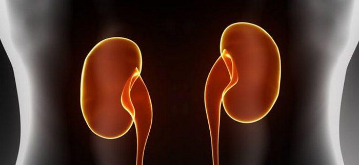Что такое двухсторонний нефроптоз