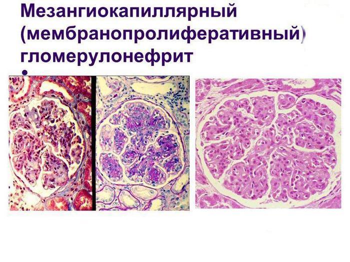 мембранопролиферативный гломерулонефрит