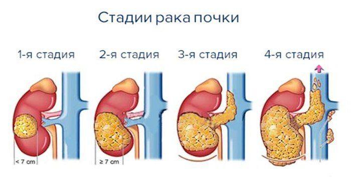 опухоль почки, симптомы, лечение и сколько живут
