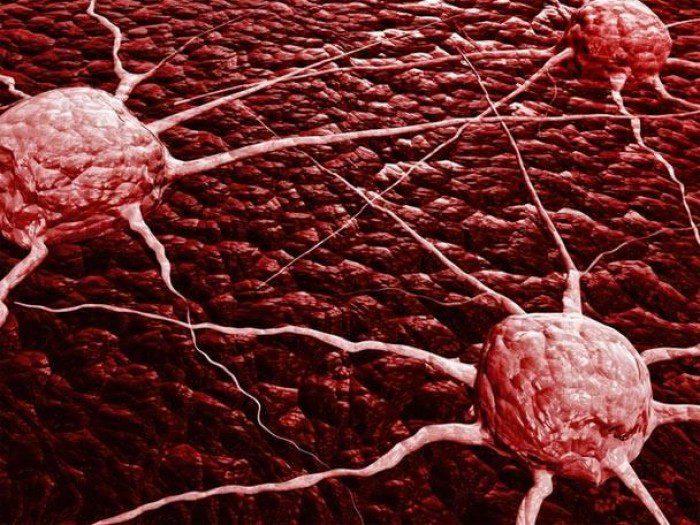 метастазы в почках и симптомы