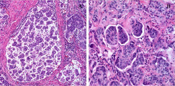папиллярный рак почки