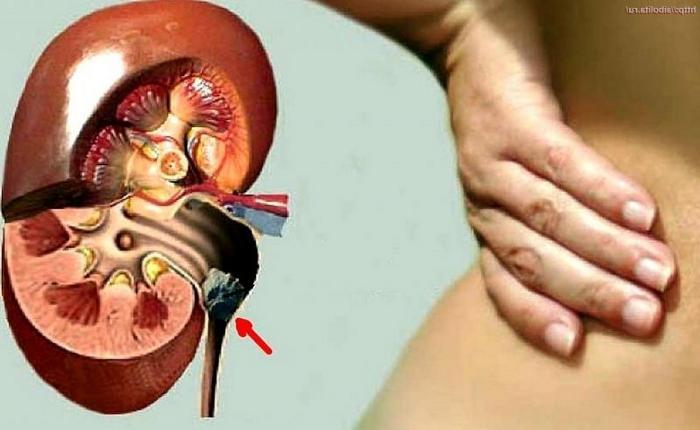 гидронефроз у беременных