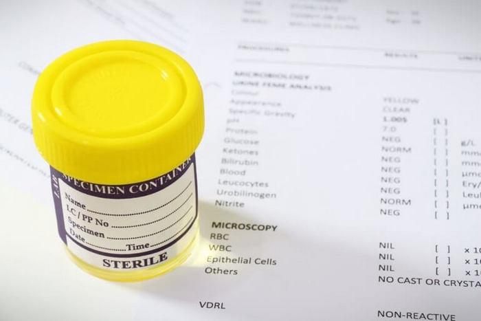 Анализ крови при пиелонефрите у ребенка показатели