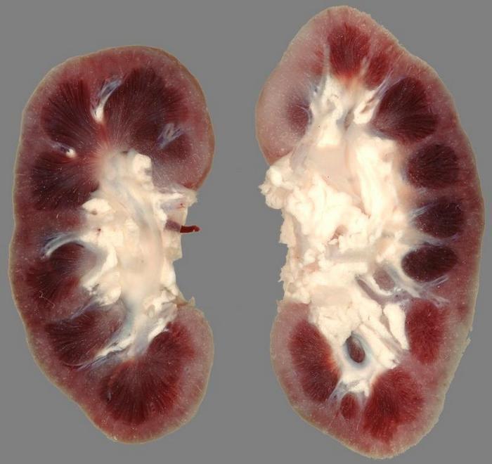 острый гломерулонефрит патогенез