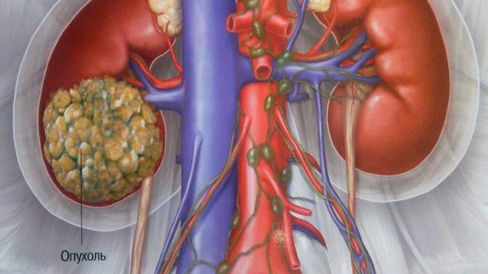 Болезнь пиелонефрит симптомы