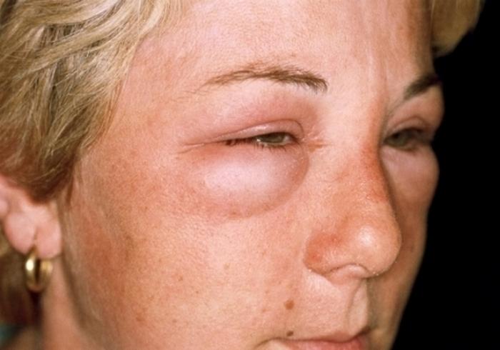 гломерулонефрит синдромы