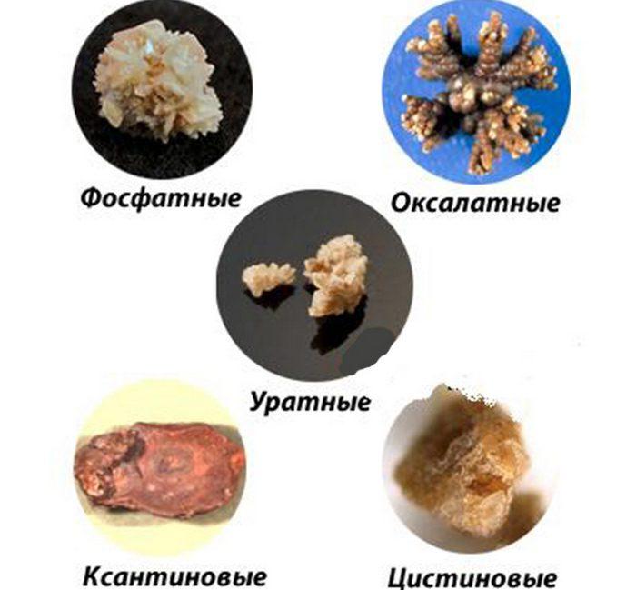 Оксалатные камни в почках диета лечение