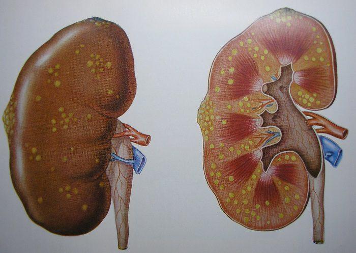 гнойный пиелонефрит симптомы