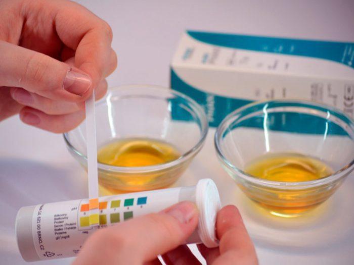 острый пиелонефрит у женщин симптомы и лечение