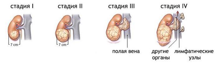 рак почки симптомы