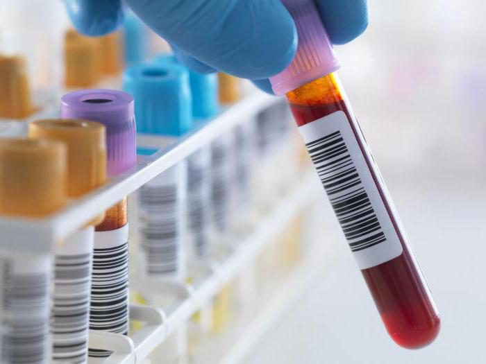 пиелонефрит диагностика и лечение