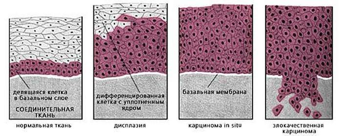 гипернефроидный рак почки