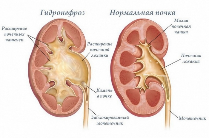 пиелонефрит передается от человека к человеку