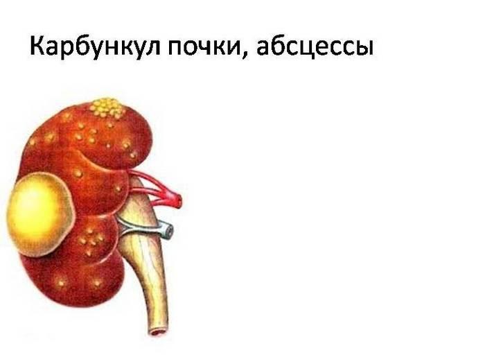 гнойный пиелонефрит