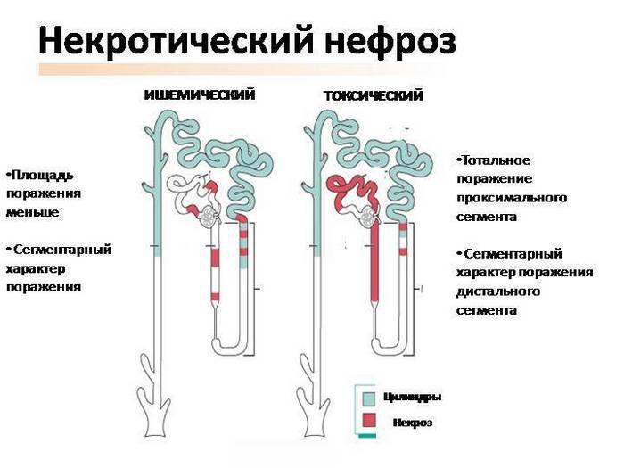 некротический нефроз и микропрепарат