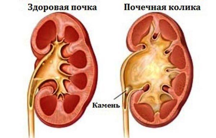 Обезболивающие средства при камнях в почках
