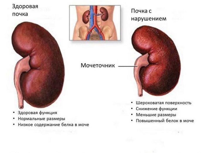 Воспаление почек при сахарном диабете лечение
