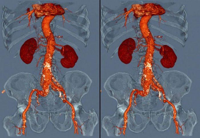 рентген с контрастным веществом урология