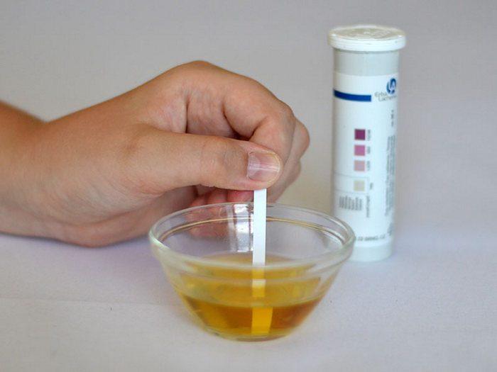 повышенное содержание ацетона в моче