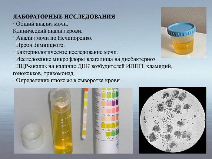 повышенное содержание эритроцитов в моче