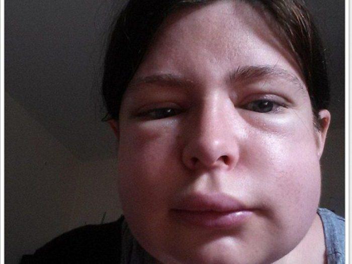липоидный нефроз у детей