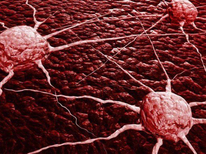 гиперплазия почки