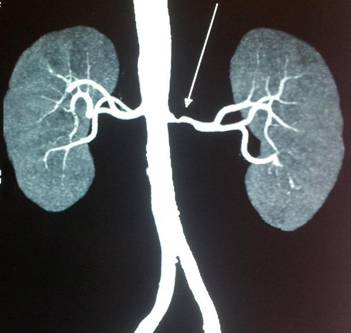 фибромускулярная дисплазия почечных артерий