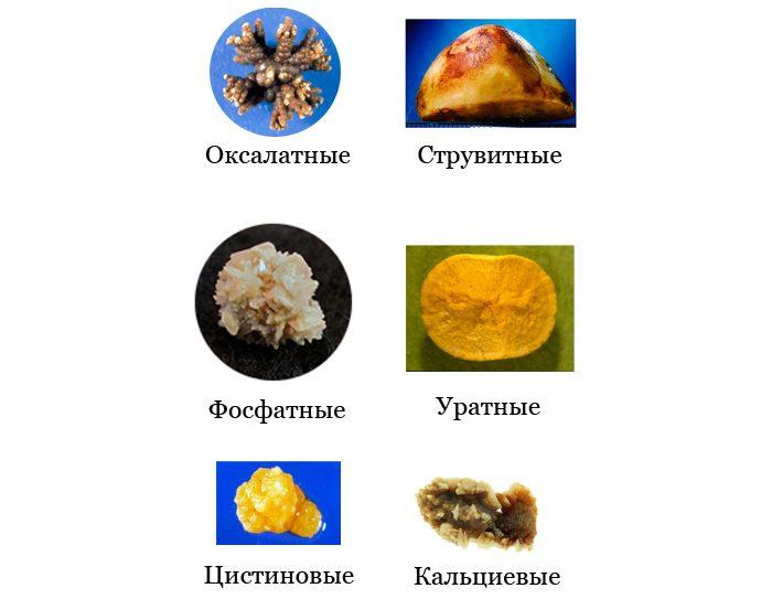 соли в почках симптомы лечение