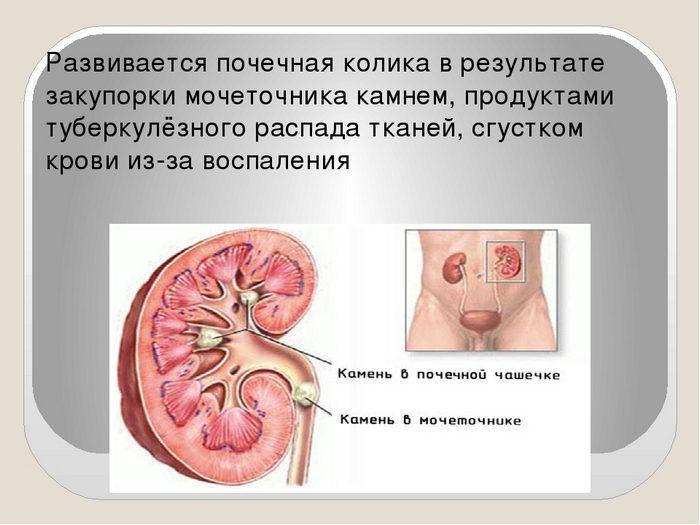 почечная колика и симптомы у женщин