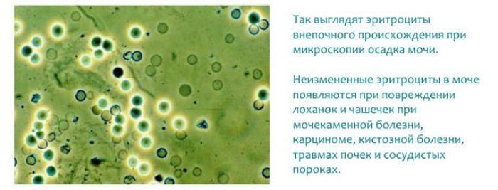 повышенное содержание эритроцитов в моче у женщин