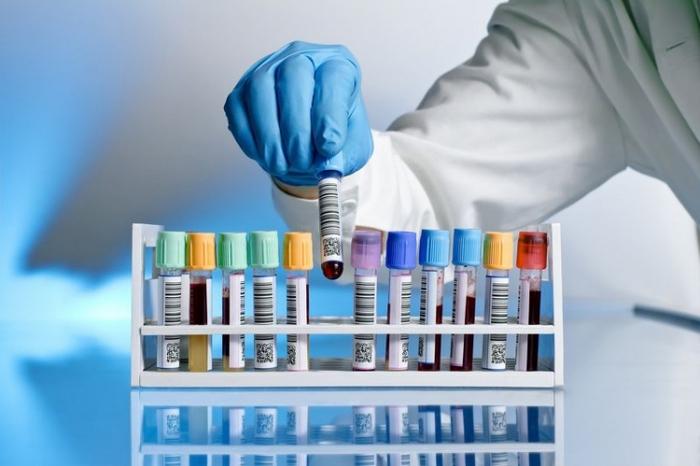 Какой анализ крови показывает состояние почек. Как проверить работу почек и какие анализы сделать