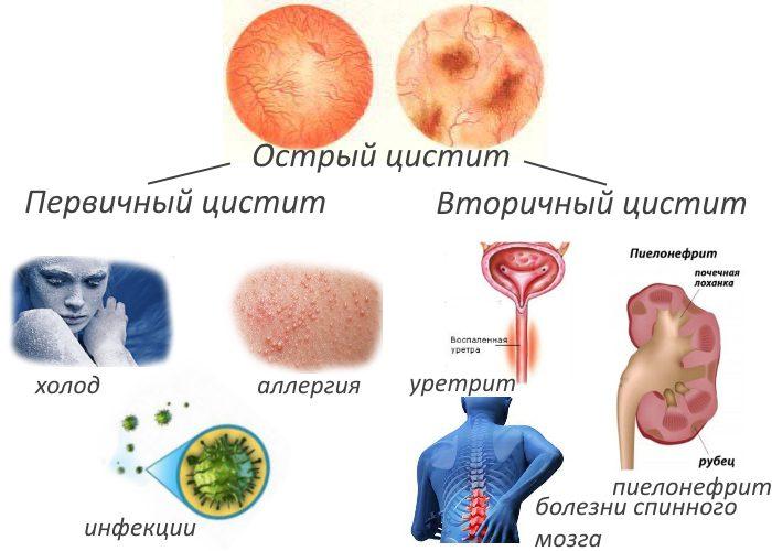 Лечение хронического цистита у женщин форум
