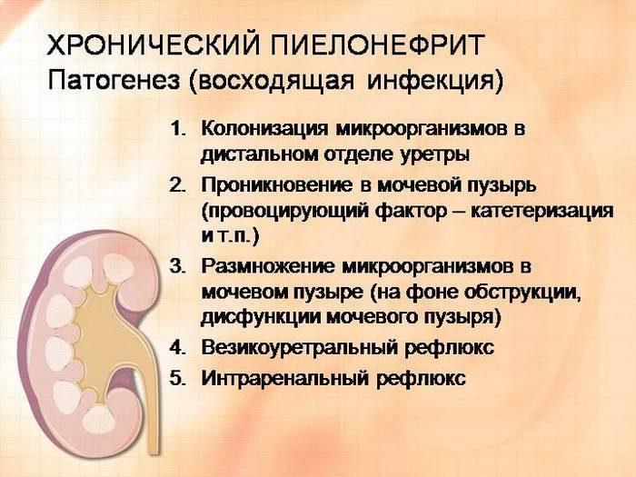 Сколько лечат пиелонефрит