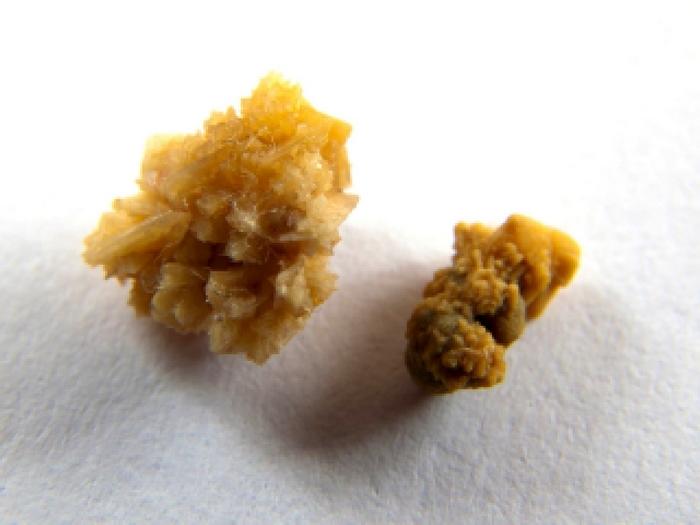 Диета при оксалатных камнях в почках