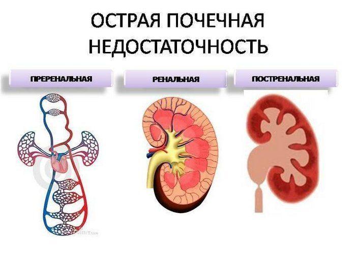 почки симптомы болезни