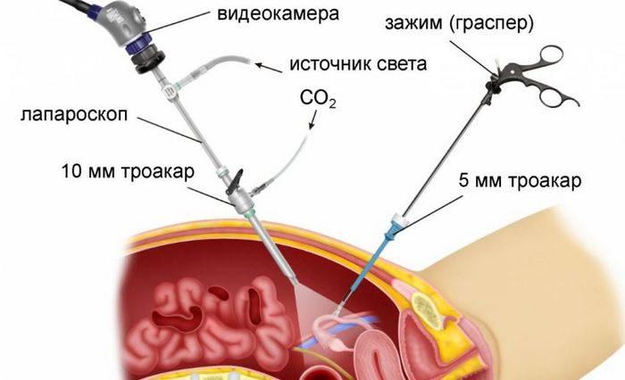 удаление почки лапароскопическим методом