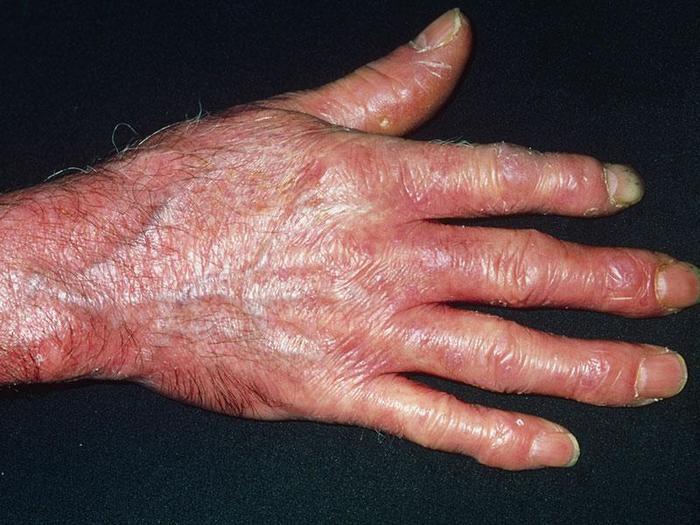 патология почек при системных заболеваниях