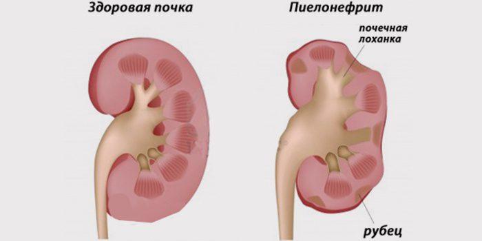 нефроптоз и беременность